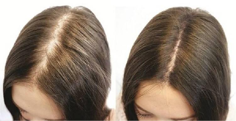 Дарсонвализация кожи головы (15 мин.), фото 2