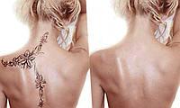Обучение лазерному удалению татуажа и татуировок