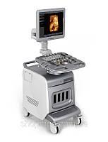 УЗИ сканер Chison i3