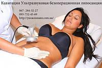 Ультразвуковая липосакция | кавитация