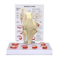 Модель коленчатого мениска