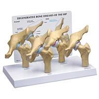 Дегенеративные заболевания костей бедра