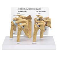 Модель плечевого остеоартрита (OA) плеча