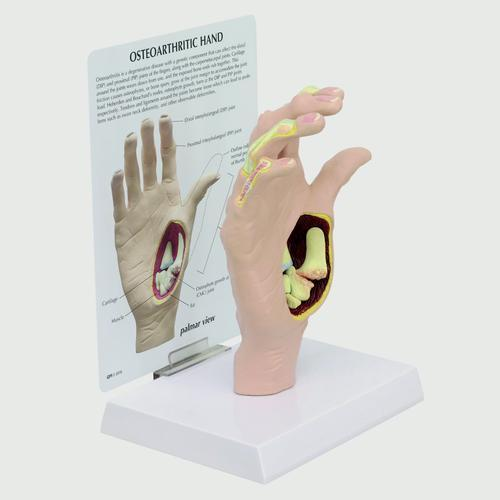 Модель остеоартрита руки