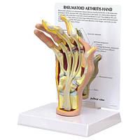 Модель артрита руки
