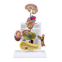 Модель метаболического синдрома