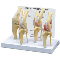 Модель коленного остеоартрита нормальная в трех состояниях