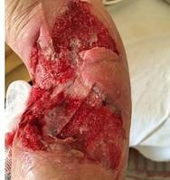 Рекомендации по лечению ран различного генеза