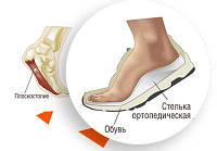 Ортопедические стельки изготовление, бесплатная диагностика