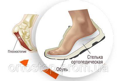 f8d8e4b45 Ортопедические стельки изготовление, бесплатная диагностика - OrtoStop в  Запорожье