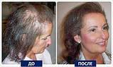 Atika (Атика) - кокосовое масло от выпадения волос. Цена производителя. Фирменний магазин., фото 2
