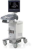 УЗИ аппарат Siemens ACUSON X300
