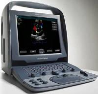 Сканер ультразвуковой диагностический Siemens ACUSON Cypress
