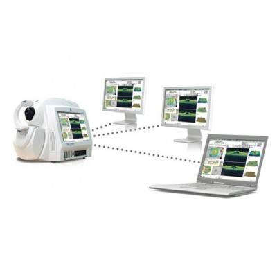Оптико-когерентный томограф Cirrus HD-OCT 500, фото 2