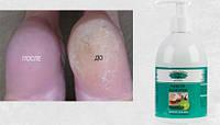Средство для педикюра, удаления мазолей и натоптышей , жидкий пилинг, ремовер  Callus Remover Global 500 млL