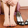 5 основных причин деформации женских стоп