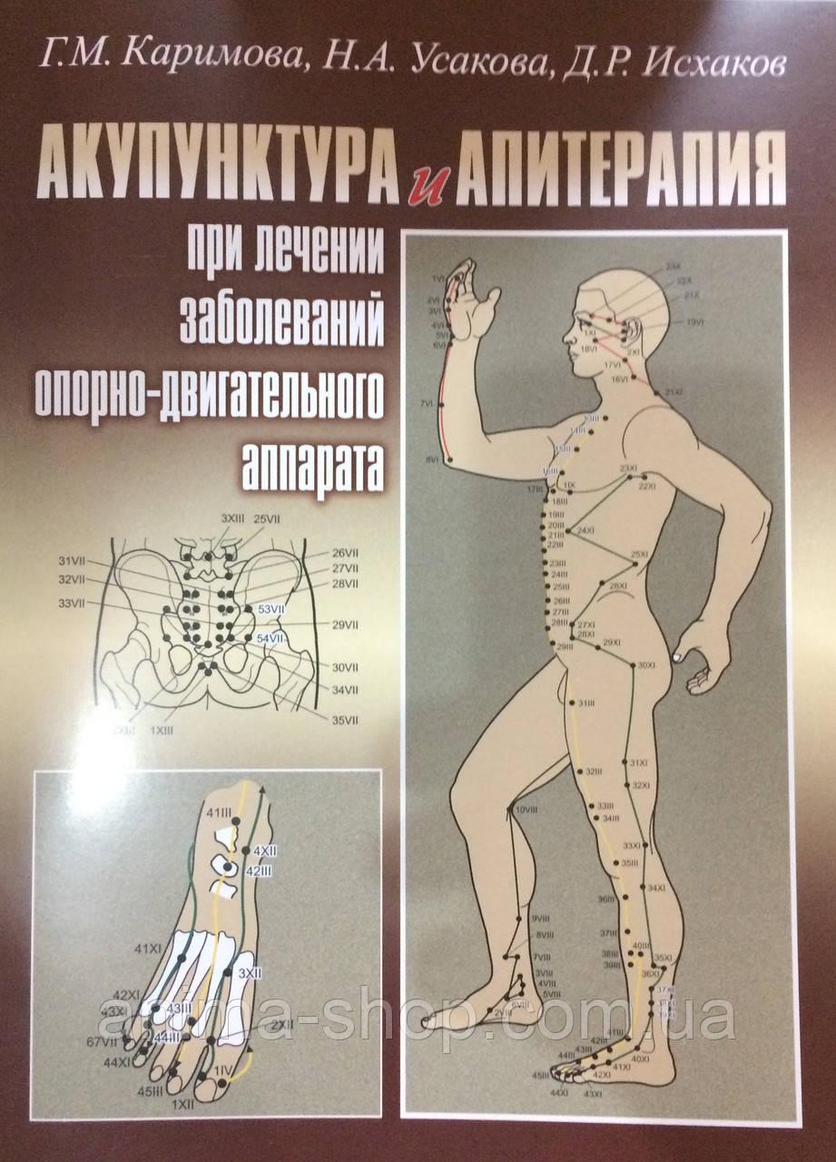 Акупунктура и Апитерапия при лечении заболеваний опорно-двигательного аппарата - ANIMA • ЭЗОТЕРИЧЕСКИЙ МАГАЗИН  в Одессе