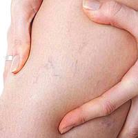 5 фактов о варикозе, которые должен знать каждый