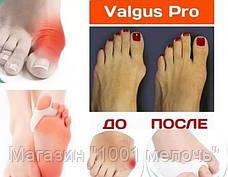 Фиксатор больших пальцев Valgus Pro, фото 3