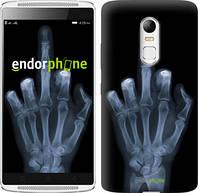 "Чехол на Lenovo Vibe X3 Рука через рентген ""1007u-155"""