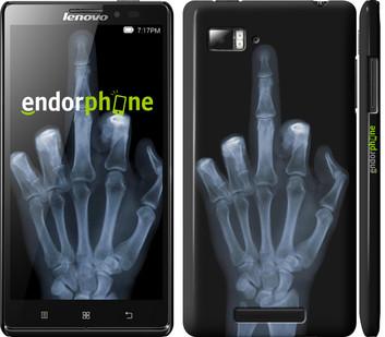 Чехол на Lenovo Vibe Z K910 Рука через рентген