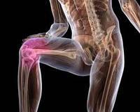 Артрит, артроз коленного сустава. Лечение бурсита тазобедренного сустава. Бурсит локтевого сустава.