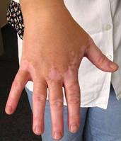 Мелагенин Плюс (Melagenina Plus) Витилиго, депигментация кожи в результате ожогов любого происхождения, гнездная плешивость.