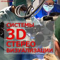 3D СТЕРЕО СИСТЕМЫ ВИЗУАЛИЗАЦИИ ДЛЯ ОПЕРАЦИОННЫХ МИКРОСКОПОВ