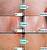 Массажеры - лифтинг очищение для лица и тела Clarisonic Mia 2,  запасная щетка в комплекте, фото 4