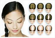 Дифузне випадання волосся