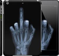 """Чехол на iPad 5 (Air) Рука через рентген """"1007c-26"""""""