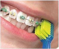 Зубная щетка Curaprox CS 5460 Ortho для чистки брекет систем, Швейцария