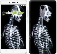 """Чехол на Xiaomi Redmi Note 4 Скелет-меломан """"941c-352"""""""