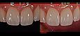 Контрастеры для дентальной фотографии Flexipalette (Флексипалет), Smile Line, фото 2
