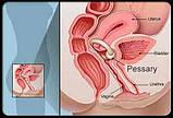 Пессарий силиконовый уретральный, фото 2