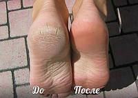 Пилинг для ног 60мл, фото 1