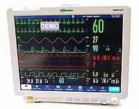 """Монитор пациента """"БИОМЕД"""" ВМ800D 15"""""""