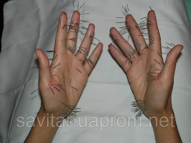 Су-Джок –уникальный метод лечения,   дарованный Природой