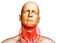 Профилактика и лечение ангины и заболеваний горла