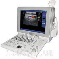 Прибор ультразвуковой сканирующий Ultima SM-70 (Радмир)