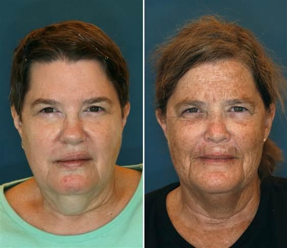 влияние солнца на кожу на примере близнецов
