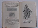 """Старобинский И. """"Болезни зубов, челюстей и рта"""" Медгиз 1949 год. 103 рисунка в тексте, фото 5"""