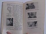 """Старобинский И. """"Болезни зубов, челюстей и рта"""" Медгиз 1949 год. 103 рисунка в тексте, фото 6"""