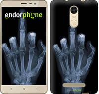"""Чехол на Xiaomi Redmi Note 3 pro Рука через рентген """"1007c-335-817"""""""