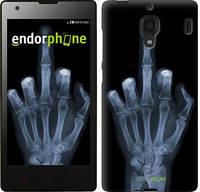 """Чехол на Xiaomi Redmi Рука через рентген """"1007u-110-817"""""""