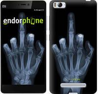 """Чехол на Xiaomi Mi4i Рука через рентген """"1007c-177-817"""""""