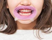 OptraGate Junior розовый ретрактор для детей