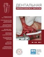 Дентальная имплантология и хирургия