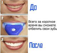 Гелевое отбеливание зубов White Light (Вайт Лайт) в домашних условиях