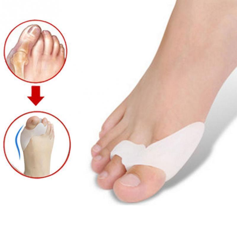 Почему болит косточка на ноге и как с этим бороться